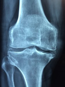 The Skiing ABCs K -- an xray image of a knee